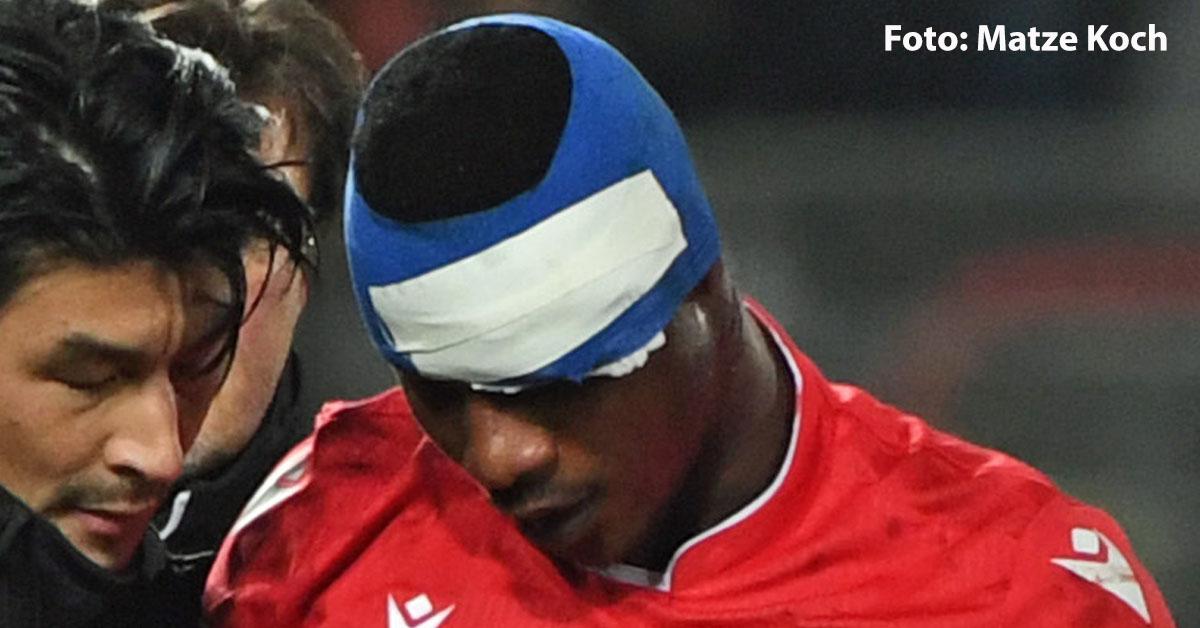 Suleiman Abdullahi erlitt eine Gehirnerschütterung im Test gegen Holstein Kiel, Foto: Matze Koch